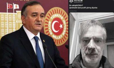 MHP'li Erkan Akçay, darp edilen yazarın fotoğrafını paylaşıp, hakaret etti
