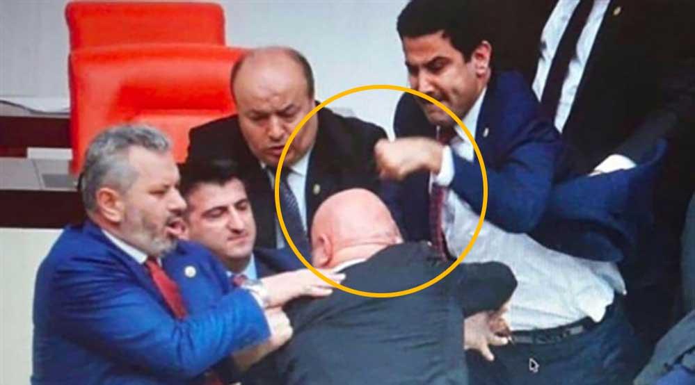 CHP'li Engin Özkoç'a yumruk atan AKP'li Yıldız'ın eli 3 yerden kırılmış!