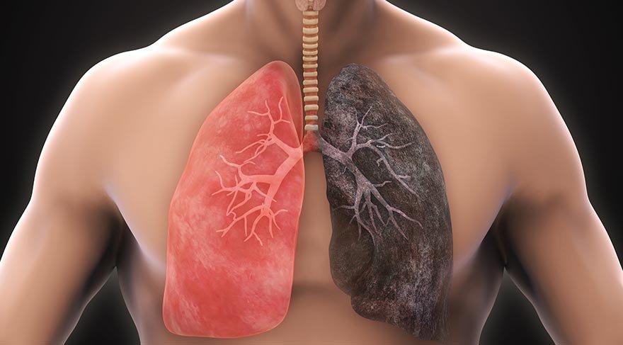 Akciğerlerin kendini temizlemesini sağlayan mucizevi 10 besin