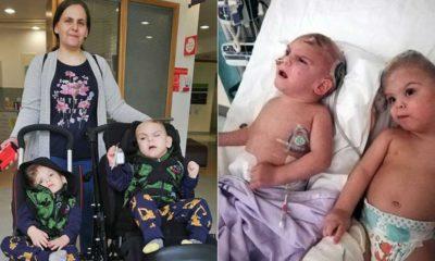 Siyam ikizlerine hayat veren operasyon