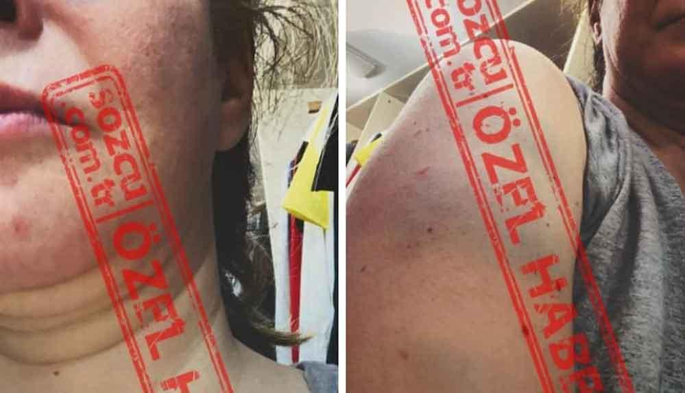 Tansu Çiller'in oğlu Mert Çiller'e boşanma davası açan eşi: Saçımdan sürükleyerek kafamı duvardan duvara vurdu, kaburgalarımı kırdı