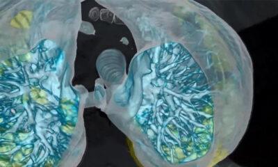 Kovid-19'un akciğerlerde bıraktığı hasarın iyileşmesi 12 hafta sürebiliyor