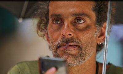 Dudaklarını diken Kolombiyalı sanatçı açlık grevine başladı