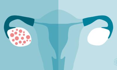 Polikistik over sendromu kadınlarda kısırlık nedeni