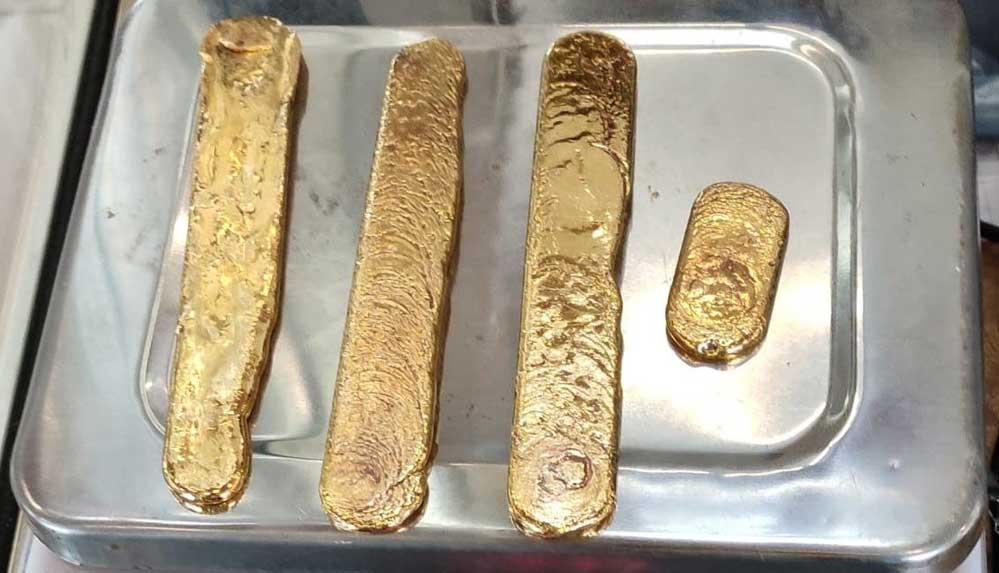 Garip yürüyen yolcunun bağırsaklarından 1 kiloya yakın külçe altın çıktı