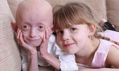 Erken yaşlanma hastalığına karşı ilk kez ilaç geliştirildi