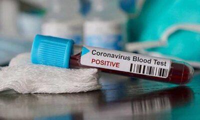 Koronavirüs hastası: '100'den fazla belirti yaşadım, halüsinasyonlar gördüm'