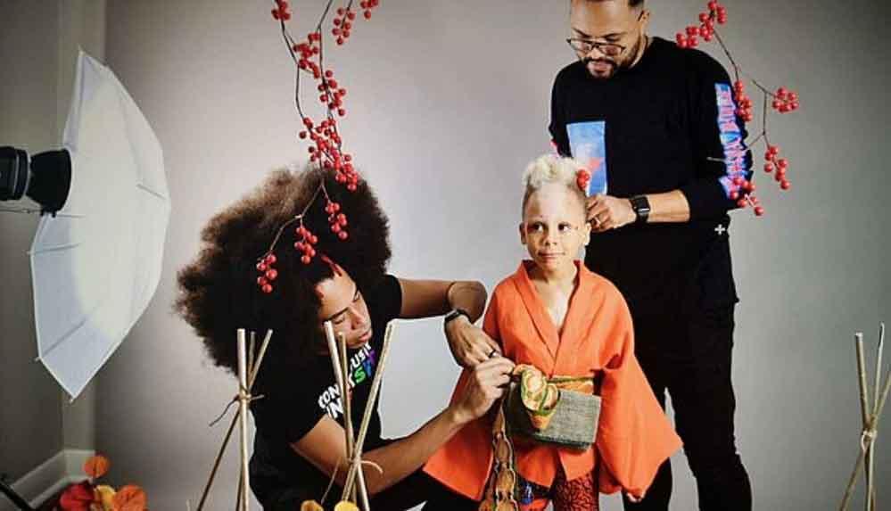 Nadir görülen deri hastalığı olan çocuk, uluslararası model oldu
