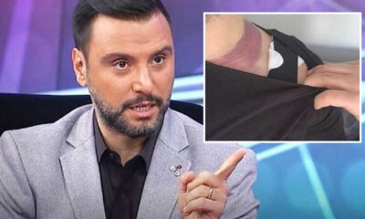 Alişan'dan doktora 2 milyon liralık tazminat davası: 'Kalıcı hasar oluştu'