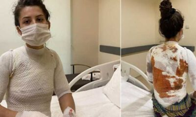 Eşini ve 1.5 yaşındaki kızını kaynar suyla yakan saldırgan serbest: 'Seni öldürsem 3 yıl yatar çıkarım' diyordu