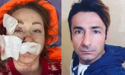 Ukraynalı kadın ayrılmak istediği eşinin falçatalı saldırısına uğradı