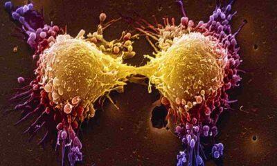 Covid salgını, kanserle mücadeleyi nasıl etkiledi?