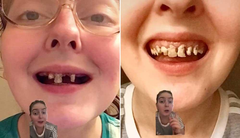 ABD'de 10 yıldır aşırı kola tüketen genç kadının dişleri döküldü