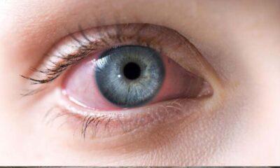 Göz kızarıklığına ne iyi gelir? Göz kızarıklığı nasıl geçer?