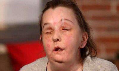 İkinci kez yüz nakli yapılan kadın ilk kez basın karşısına çıktı