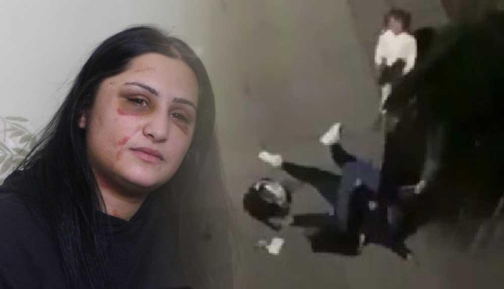 Samsun'da eski eşi tarafından dövülen kadın: Şiddet sessiz kalındıkça çoğalıyor