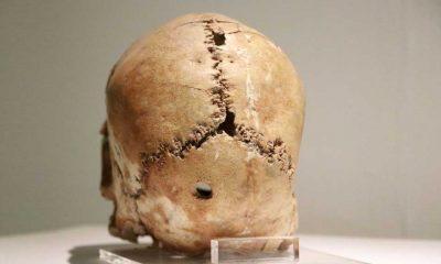 Dünyanın ilk beyin ameliyatının yapıldığı yer: Aşıklı Höyük