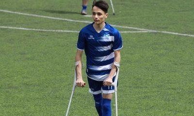 Kaybettiği ayağına rağmen futbol tutkusundan vazgeçmedi