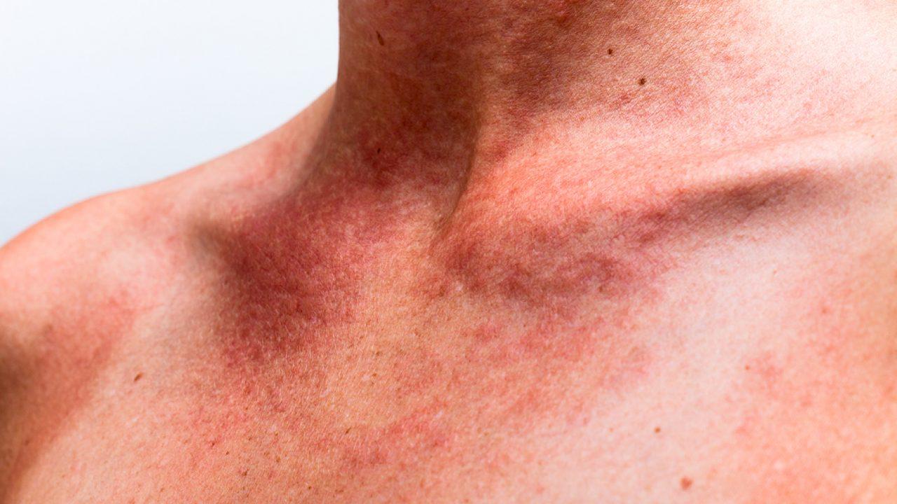 Güneş alerjisi nedir? Güneş alerjisine ne iyi gelir?