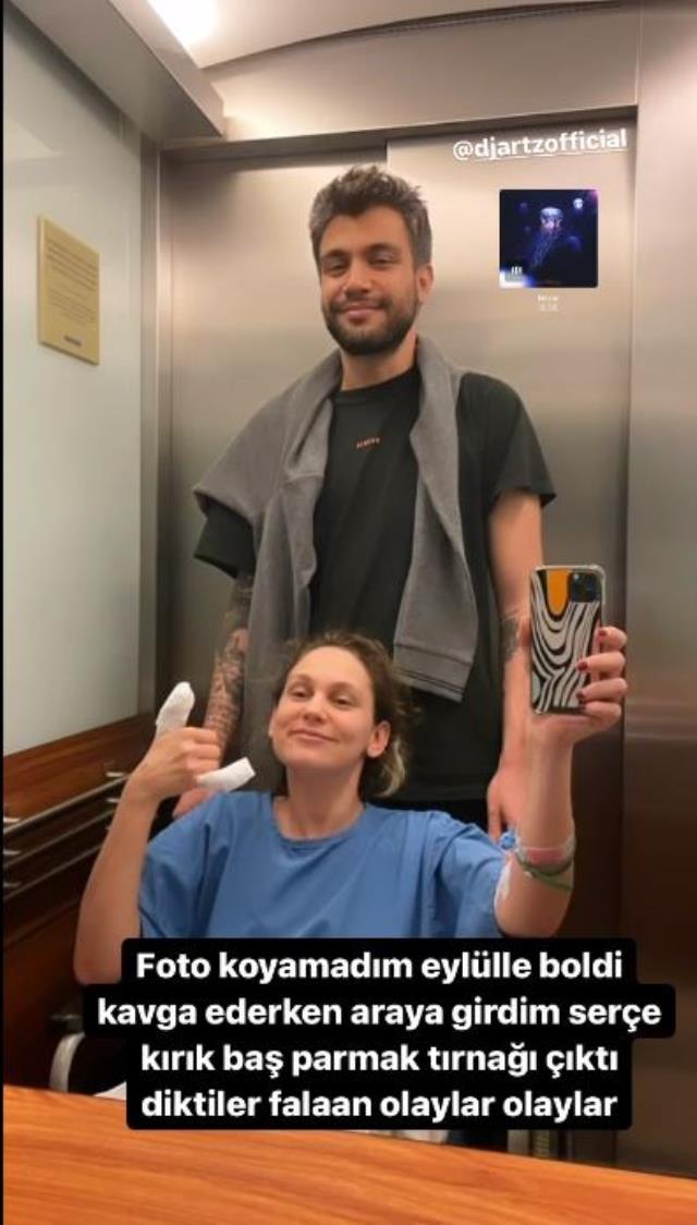 Farah Zeynep Abdullah köpeklerini ayırmaya çalışırken hastanelik oldu!