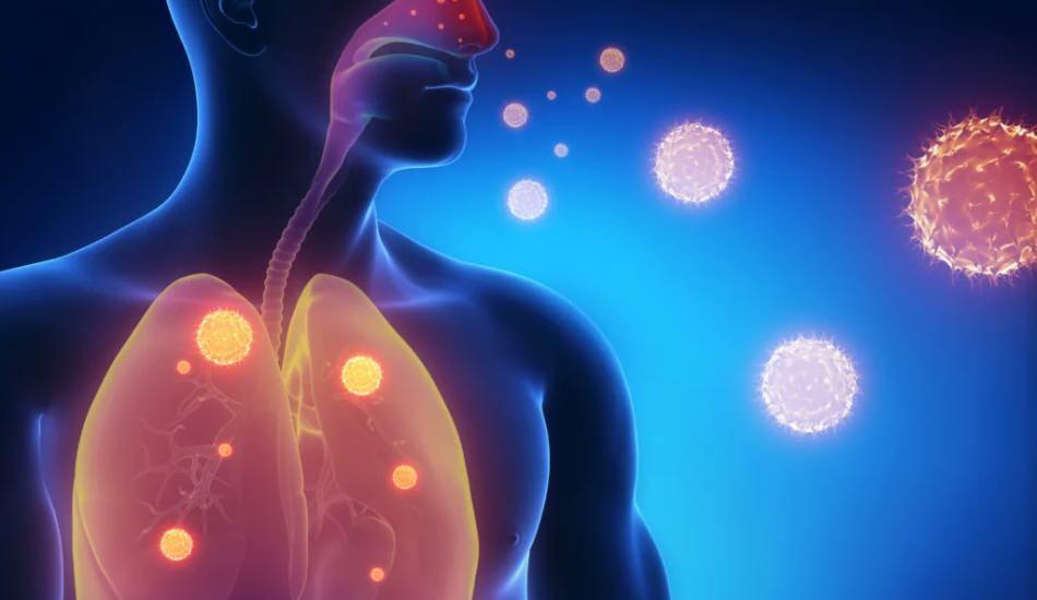 Zatürre (Pnömoni) nedir? Zatürre belirtileri nelerdir, tedavisi nasıl olmalı?
