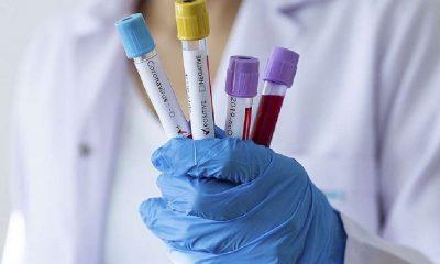 Son 24 saatte Türkiye'nin Koronavirüs Tablosu