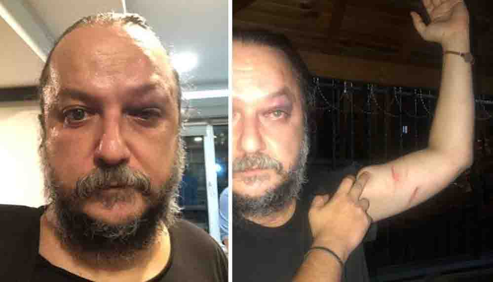 Güvenç Dağüstün'e saldıranlar yakalandı: Silahlı, mermili ve bıçaklı fotoğrafları ortaya çıktı