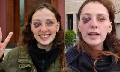 Boğaziçi Üniversitesi protestosunda gözaltına alınan Mısra Sapan: Sivil polisler direkt yüzüme diz attı