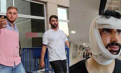 Trafikte tartıştıkları gazetecinin çenesini kıran tutuklu 2 sanık tahliye edildi